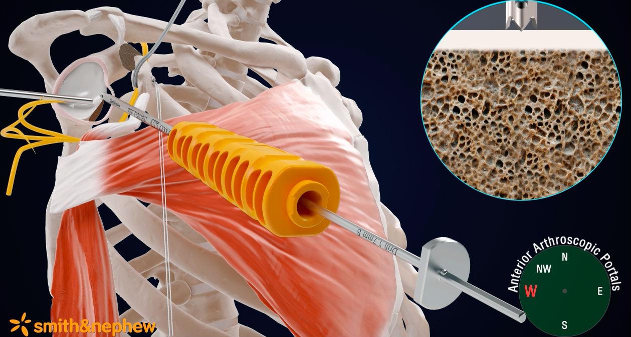 Gomet' Santé ] Une nouvelle technique pratiquée à la Polyclinique du ...